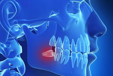 treatments page wisdom teeth_mini
